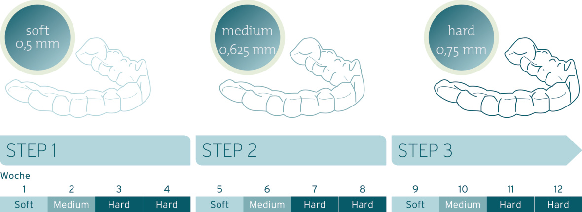 CA® 3 Schienen System, deutsch, CA® CLEAR ALIGNER, Illustration, Katalo