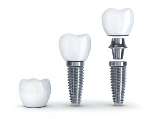 implantat-osnabrck